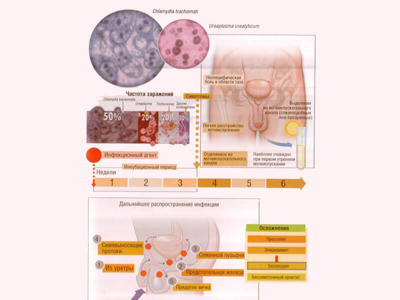 уреаплазма у мужчин схема лечения