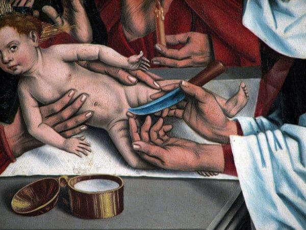 Обрезание у мужчин – почто сие такое?