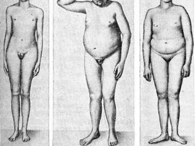 Удаление яичек у мужчин: способы мужской кастрации и последствия