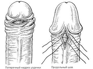Разрыв уздечки полового члена у мужчин - хирургическое лечение