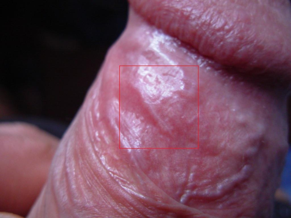При сексе лопается кожа головки члена