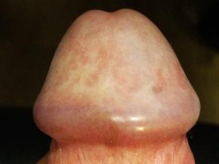 Перед сексом прозрачная жидкость из члена