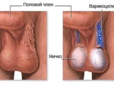 Варикоцеле левого яичка: причины, степени развития и симптомы ...