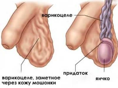 Варикоцеле справа: что это такое, способы лечения правостороннего ...