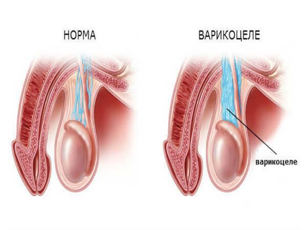 Операция на варикоцеле: проба Вальсальвы, лапароскопия, операция ...