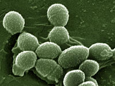 Enterococcus faecalis в мазке: что это за бактерия, какое ...