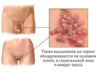 Лечение герпеса в интимных местах при беременности