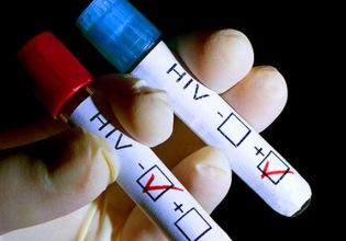 Где анонимно сдать кровь на ВИЧ