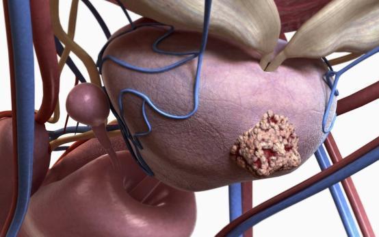 Издано первое в мире клиническое руководство по анальному сексу после лечения рака простаты