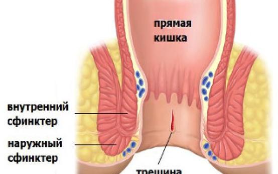 Как лечить трещины в заднем проходе: особенности терапии