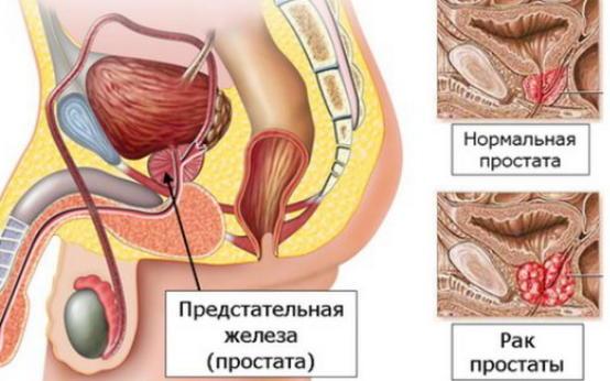 Рак предстательной железы: прогноз выживаемости при различных стадиях
