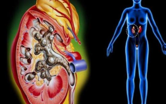 Микролиты в почках: что это такое, основные причины и клинические проявления заболевания