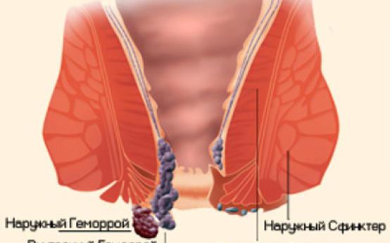 Симптомы геморроя, классификация и особенности заболевания