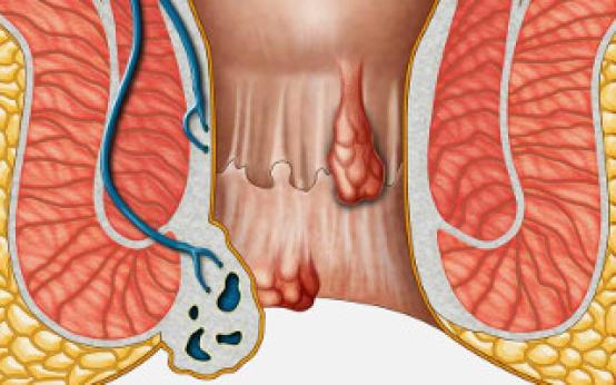 Шишка возле заднего прохода: этиология заболевания и причины возникновения геморроидальных узлов