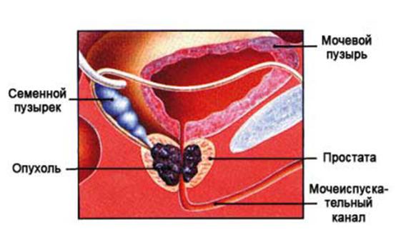 Препараты для лечения рака простаты: принципы назначения