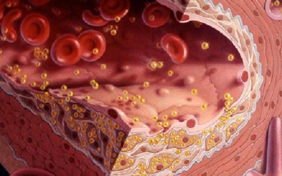Как привести в норму холестерин: действенные способы снижения ЛПНП