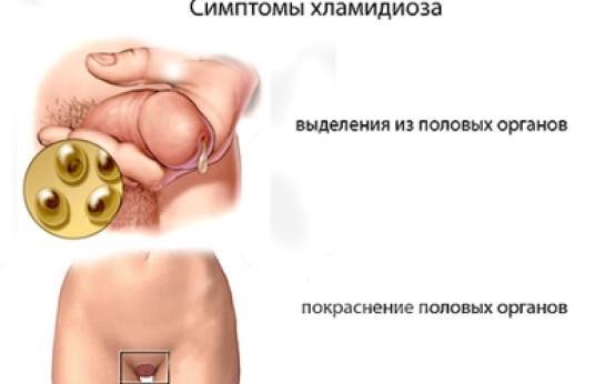Хламидиоз: симптомы и особенности течения заболевания