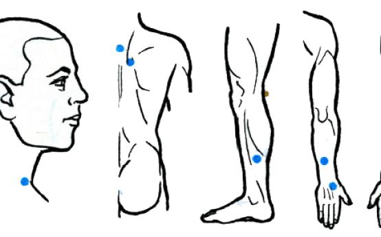 Точечный массаж при гипертонии может быть включен в общий комплекс лечения