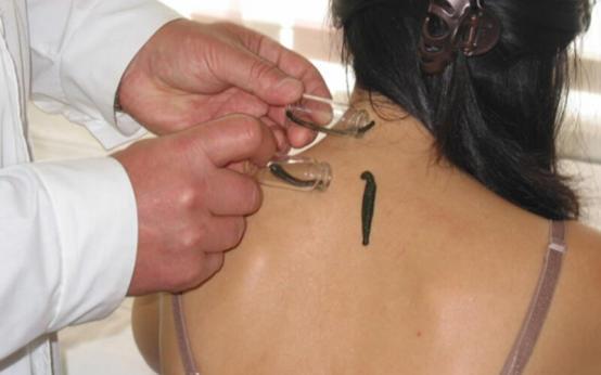 Лечение пиявками остеохондроза шейного отдела: особенности процедуры и ее эффективность