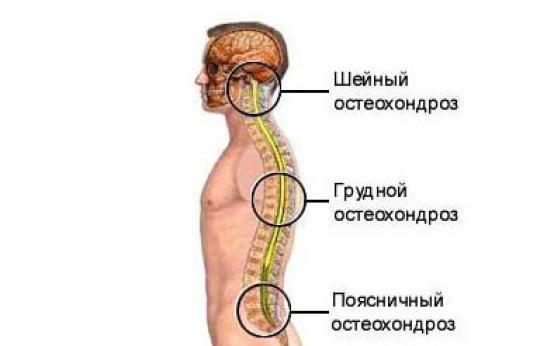 Массаж при остеохондрозе позвоночника: польза и показания