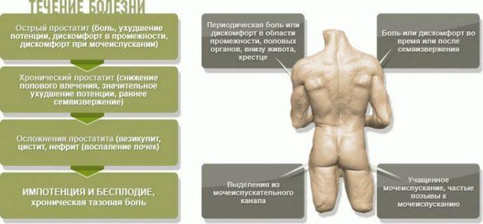 Варианты простатита и их симптоматика