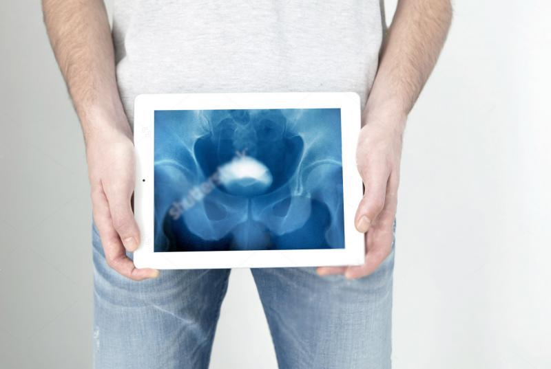 Уретрография у мужчин