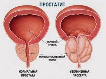 Разница между здоровой и воспалённой предстательной железой