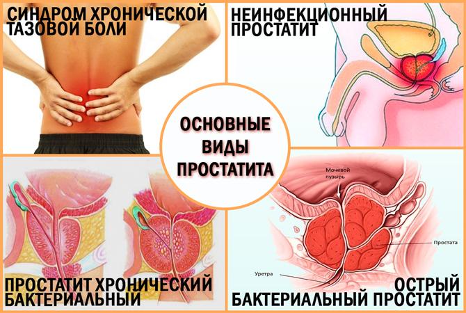 Основные виды простатита