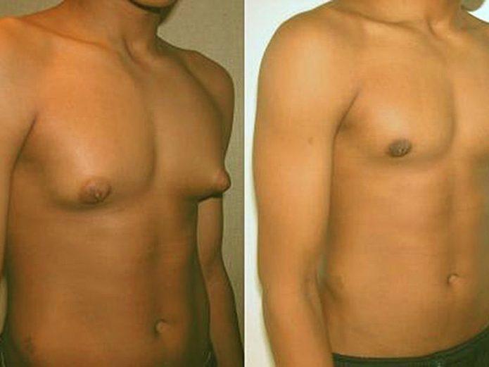Мужчины: с гинекомастией и нормальной формой желёз