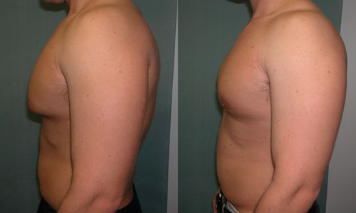 Мужчина до и после хирургического лечения гинекомастии
