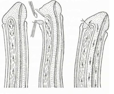 Схема формирования шунта между кавернозными и губчатыми телами полового члена для улучшения оттока крови