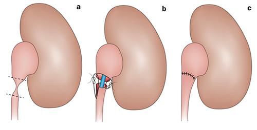 Этапы операции на зоне лоханочно-мочеточникового соустья на рисунке