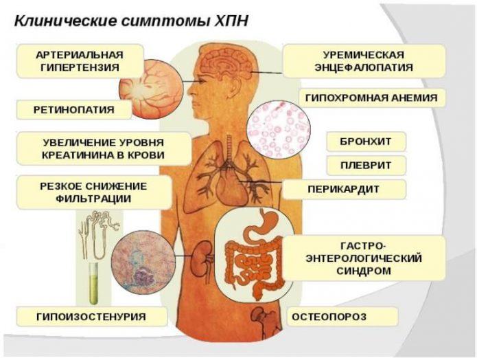 Симптомы хронический почечной недостаточности