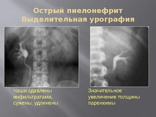 Почки на рентгеновском снимке при введении контрастного вещества