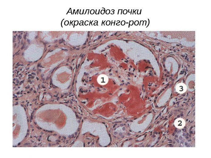 Амилоидоз почки под микроскопом