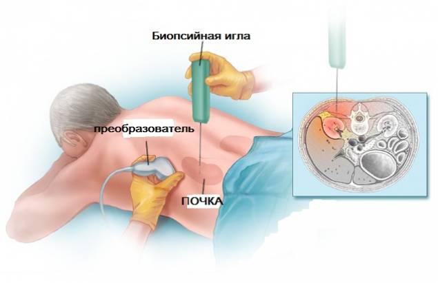 Пункционная биопсия почки