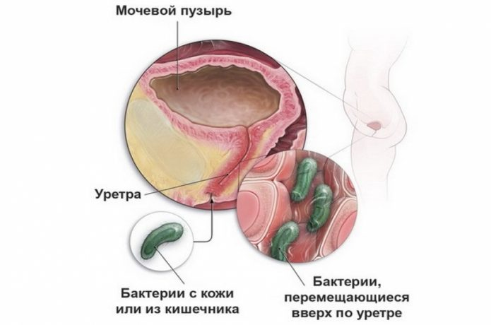 Инфицирование мочевого тракта у женщины