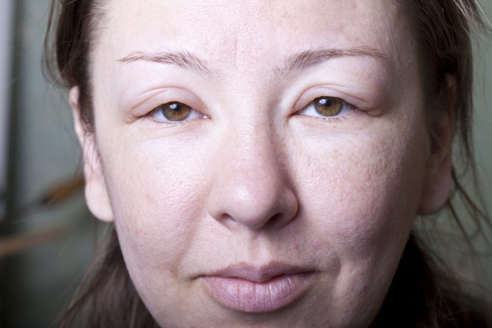 Отёки на лице