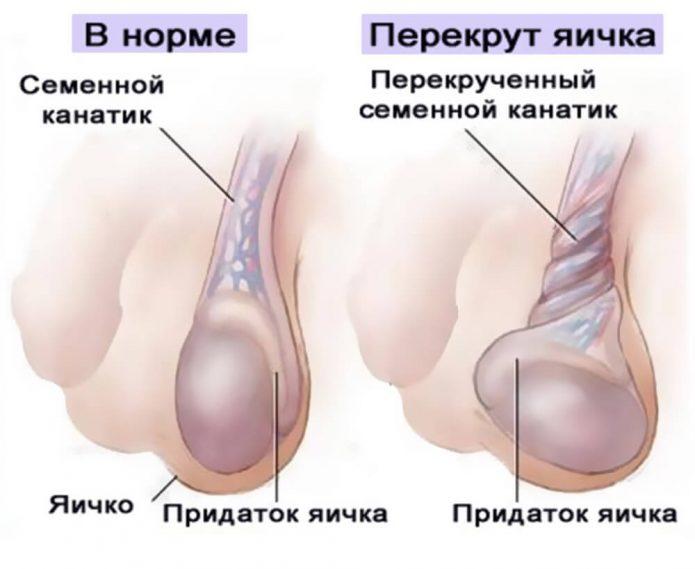 Нормальное положение яичка и перекрут