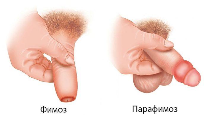 Фимоз и парафимоз полового члена