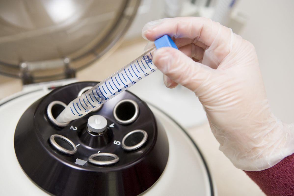 Плохая спермограмма — тревожный звоночек для здоровья мужчины